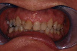 patient before a smile makeover with crooked, dark and malaligned teeth