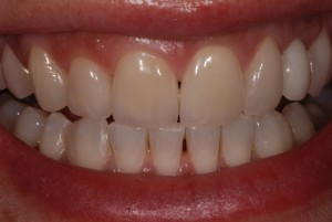 using crowns and veneers for a smile makeover