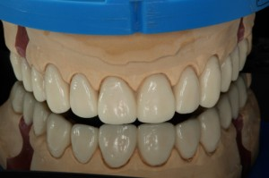 smile design front view