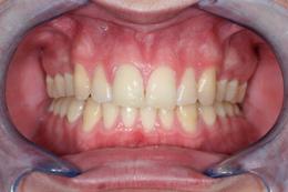 final result of dental implant